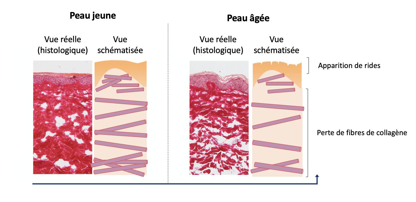 Comparaison peau jeune et peau âgée